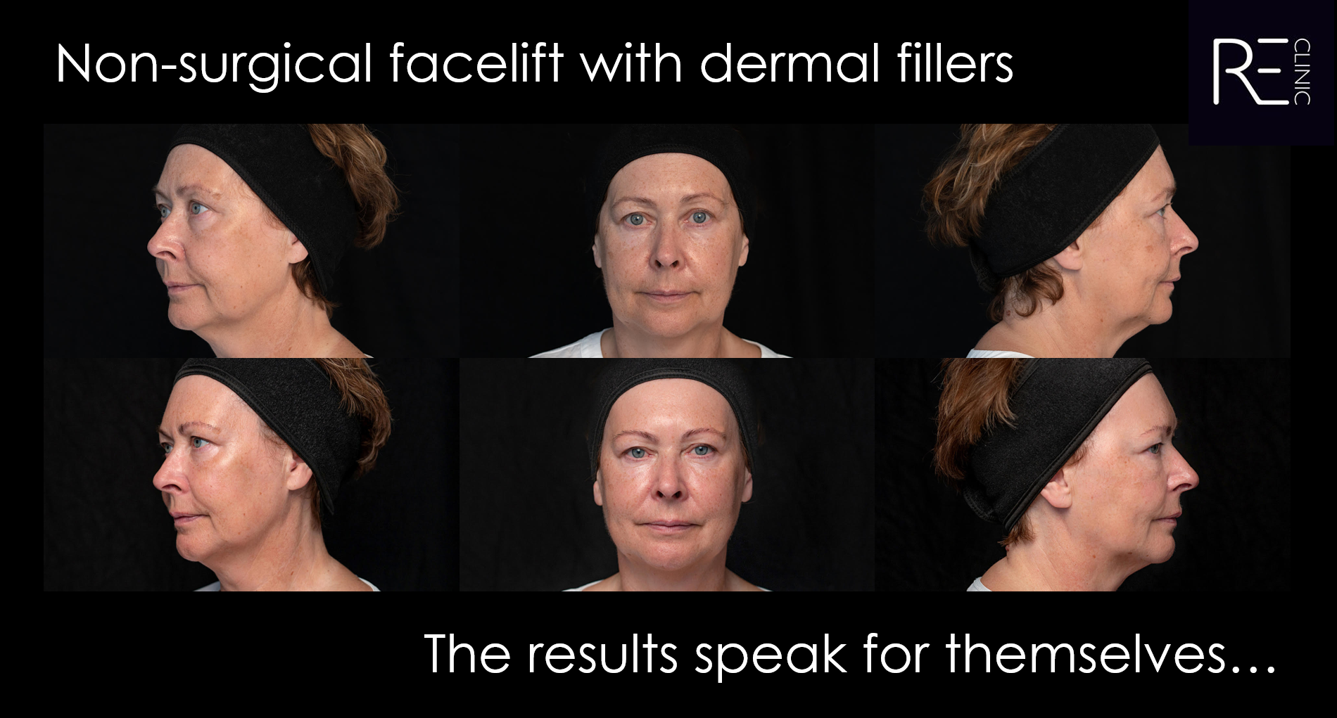 Non surgical facelift with dermal fillers