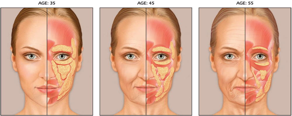 The facial ageing process